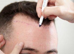 Saç ekim operasyonlarının başarısı