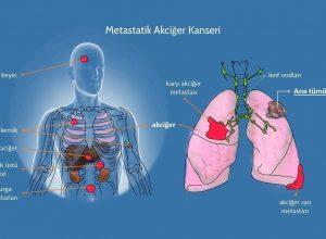 Kanser Kemiğe Sıçrarsa Ne Kadar Yaşar?