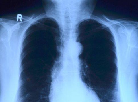AkciğerAğrısı Nedir?